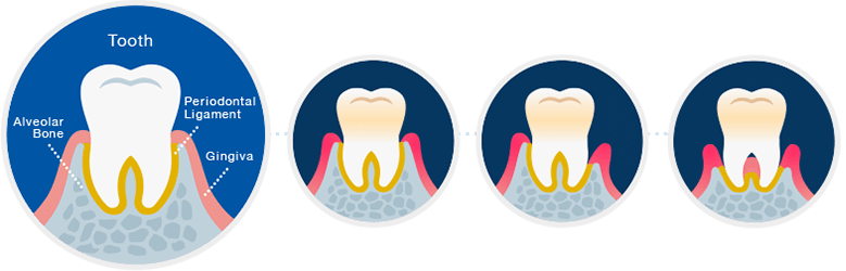 Healthy Tooth Gingivitis Moderate Periodontitis Severe Periodontitis