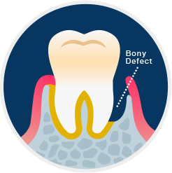 Periodontal Defect